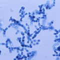 Valley Fever Fungus Found In Washington State