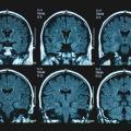 brain scans of Alzheimer's patients