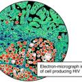 A picture of a cell forming the HIV virus.