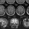 Study Explores Differences Between Brains Of Men, Women