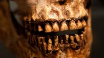 Anthropologists Study History Of Disease Through Teeth