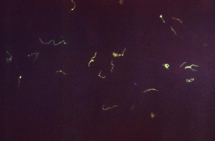 Treponema pallidum bacterium