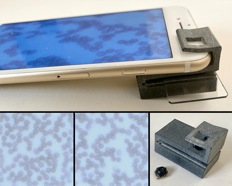 The 3D-printed HemaVision cellphone