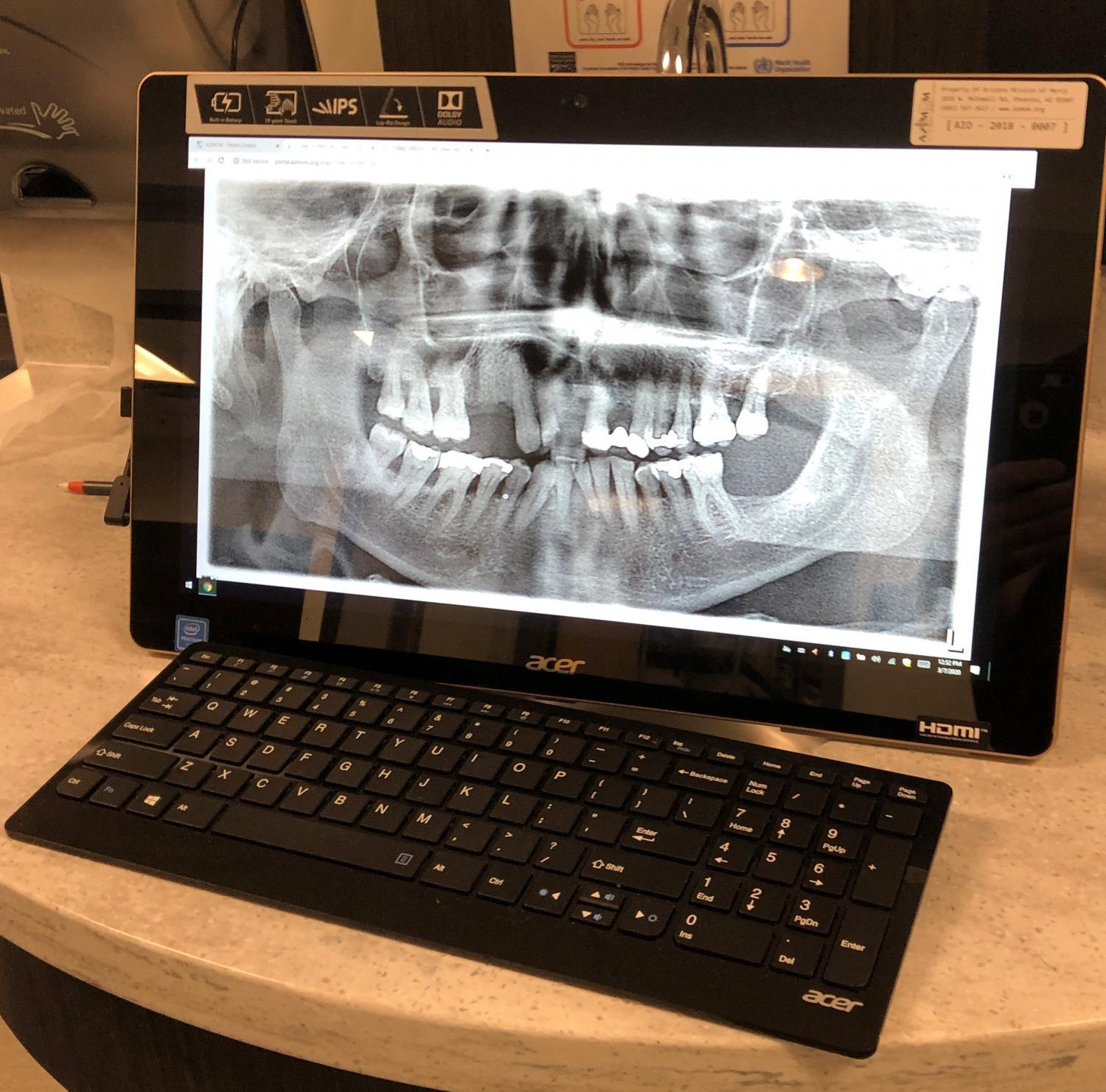 Dental x-ray from a veteran at CADS event.