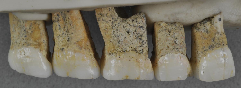 Right upper teeth of main specimen of Homo luzonensis