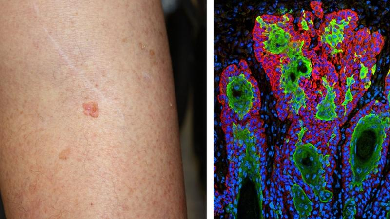 A macro and micro look at skin cancer